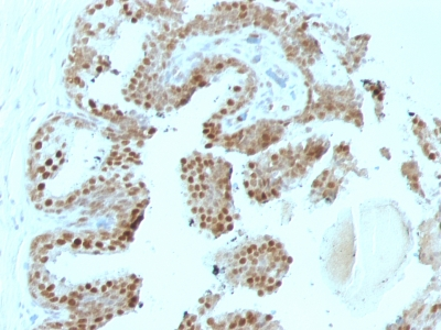 Formalin-fixed, paraffin-embedded human Prostate Carcinoma stained with p57 Monoclonal Antibody (SPM38).