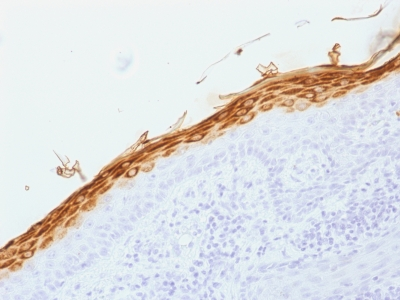 Formalin-fixed, paraffin-embedded human Skin stained with Filaggrin Monoclonal Antibody (FLG/1562).
