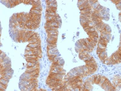Staining by anti-Ep-CAM / CD326 Antibody 1