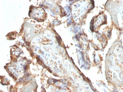 Formalin-fixed, paraffin-embedded human Placenta stained with hCG Monoclonal Antibody (HCGab/52).