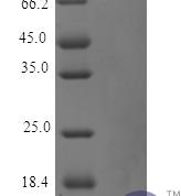 QP10148 Parathyroid Hormone