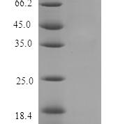 QP10149 Parathyroid Hormone