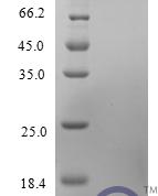 QP10224 CCL2 / MCP-1 / MCP1