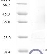 QP10234 CCL14 / HCC-1 / HCC-3