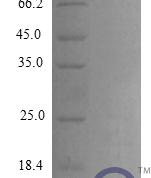 QP10274 CCL20 / MIP-3 alpha