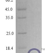 QP10281 CXCL2 / MIP-2