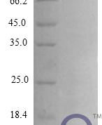 QP10282 CXCL3 / GRO gamma