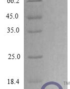 QP10283 CXCL3 / GRO gamma