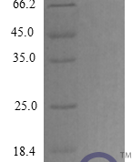 QP10285 NAP-2 / PPBP / CXCL7