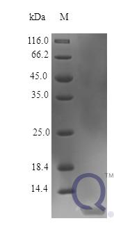 QP10389 IGF1 Isoform 2