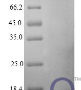 QP10409 IFNG / Interferon Gamma Protein