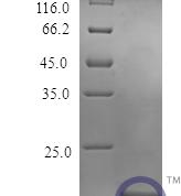 QP10427 Osteoprotegerin / TNFRSF11B