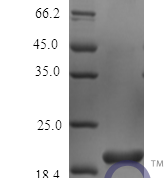QP10455 IL6 / Interleukin-6 Protein