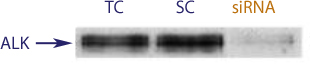 Image showing western blot data demonstrating successful knockdown of ALK by QX1 in SK-N-MC and NB-39-nu Neuroblastoma Cell Lines(TC = Transfection Control, SC = Scrambled siRNA Control, siRNA = QX1 treatment)