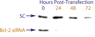 Western blot data demonstrating successful knockdown of Bcl-2 by QX10 at 48 hrs post transfection (SC = Scrambled Control (Product Number QC1), siRNA = QX10 treatment)