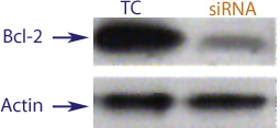 Western blot data demonstrating successful knockdown of Bcl-2 by QX11 at 120 hrs post transfection (SC = Scrambled Control (Product Number QC1), siRNA = QX11 treatment)
