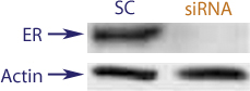 Western blot data demonstrating successful knockdown of Estrogen Receptor (ER) by QX15 at 72 hrs post transfection (SC = Scrambled Control (Product Number QC1), siRNA = QX15 treatment)