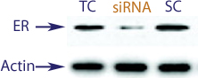 Western blot data demonstrating successful knockdown of Estrogen Receptor (ER) by QX16 at 48 hrs post transfection (TC = Transfection Control, SC = Scrambled Control (Product Number QC1), siRNA = QX16 treatment)