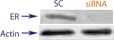 Western blot data demonstrating successful knockdown of Estrogen Receptor Beta (ERBeta) by QX17 at 72 hrs post transfection (SC = Scrambled Control (Product Number QC1), siRNA = QX17 treatment)