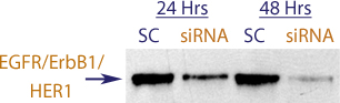 Western blot data demonstrating successful knockdown of EGFR / ErbB1 / Her1 by QX18.  Knockdown of protein is more optimal at 48 hrs post transfection (SC = Scrambled Control (Product Number QC1), siRNA = QX18 treatment)