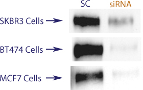Western blot data demonstrating successful knockdown of ErbB2 / Her2 by QX19.  Knockdown of protein greater than 70% relative to control in ErbB2 / Her2 overexpressing SKBR3 and BT474 cells  and wild type MCF7 cells (97% efficiency in MCF-7 cells) (SC = Scrambled Control (Product Number QC1), siRNA = QX19 treatment)