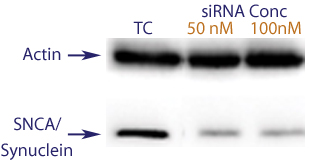 Western blot data demonstrating successful knockdown of SNCA1 by QX2 (TC = Transfection Control, siRNA = QX2 treatment)