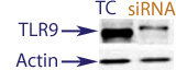 Western Blot data demonstrating successful knockdown of TLR9 in human cells 48 hours after treatment with QX28 siRNA (TC = Transfection Control, siRNA = QX28 treatment)