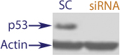 Western Blot data demonstrating successful knockdown of p53 in human cells 48 hours after treatment with QX32 siRNA and IFN gamma (SC = Scrambled Control (Product Number QC1), siRNA = QX32 treatment)