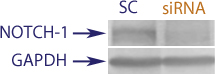 Western blot data demonstrating successful knockdown of Notch-1 in human cells 48 hours after treatment with QX37 siRNA (SC = Scrambled Control (Product Number QC1), siRNA = QX37 treatment)