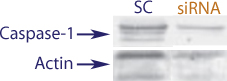 Western blot data demonstrating successful knockdown of UVB irradiation induced Caspase-1 in human cells 72 hours after treatment with QX38 siRNA (SC = Scrambled Control (Product Number QC1), siRNA = QX38 treatment)