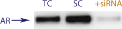 Western blot data demonstrating successful knockdown of Androgen Receptor Protein by QX4 (TC = Transfection Control, SC = Scrambled Control (Product Number QC1), siRNA = QX4 treatment)