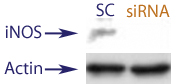 Western blot data demonstrating successful knockdown of iNOS in treated human cells approximately 8 days after treatment with QX45 siRNA.  QX45 transfection was performed again at Day 4 to ensure lasting iNOS knockdown (SC = Scrambled Control (Product Number QC1), siRNA = QX45 treatment)