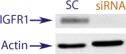 Western blot data demonstrating successful knockdown of IGF1R in human cells approximately 48 hours after treatment with QX46 siRNA (SC = Scrambled Control (Product Number QC1), siRNA = QX46 treatment)