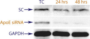 Western blot data demonstrating successful knockdown of ApoE by QX5 at both 24 and 48 hrs post transfection (TC = Transfection Control, SC = Scrambled Control (Product Number QC1), siRNA = QX5 treatment)