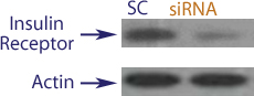 Western blot data demonstrating successful knockdown of Insulin Receptor in human cells approximately 72 hours after treatment with QX51 siRNA (SC = Scrambled Control (Product Number QC1), siRNA = QX51 treatment)