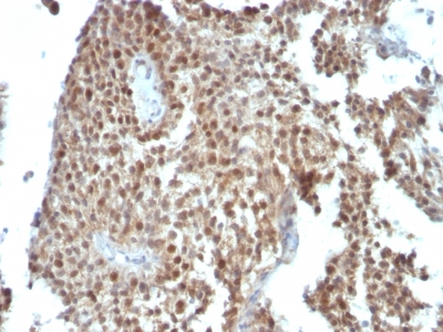 Formalin-fixed, paraffin-embedded human Colon Carcinoma stained with p21 Monoclonal Antibody (SPM36).