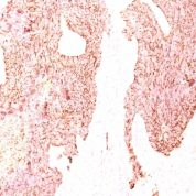 Formalin-fixed, paraffin-embedded human Small Cell Lung Carcinoma stained with Chromogranin A Monoclonal Antibody (SPM339)