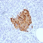Formalin-fixed, paraffin-embedded human Parathyroid stained with Chromogranin A Recombinant Rabbit Monoclonal Antibody (CHGA/1773R)