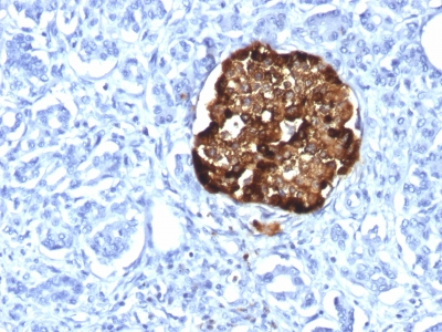 Formalin-fixed, paraffin-embedded human Pancreas stained with Chromogranin A Recombinant Rabbit Monoclonal Antibody (CHGA/1815R).