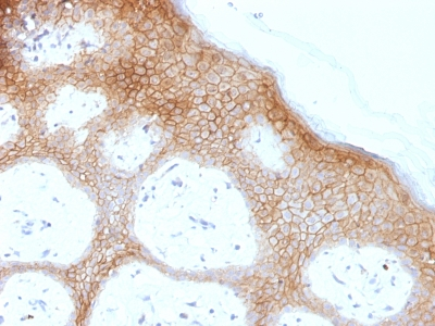Formalin-fixed, paraffin-embedded human Skin stained with Desmoglein-1 Monoclonal Antibody (DSG1/1733).