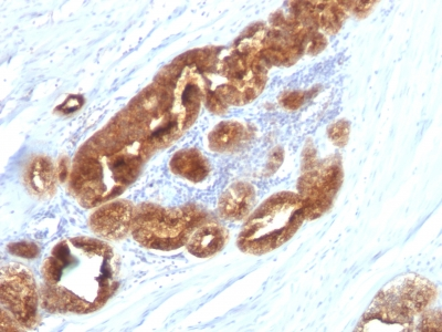 Formalin-fixed, paraffin-embedded human Ovarian Carcinoma stained with TAG-72 Monoclonal Antibody (CC49).