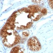 Formalin-fixed, paraffin-embedded human Ovarian Carcinoma stained with TAG-72 Monoclonal Antibody (B72.3 + CA72/733).