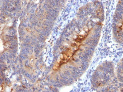 Formalin-fixed, paraffin-embedded human Colon Carcinoma stained with IgA Secretory Component Monoclonal Antibody (SC-5).