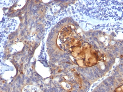 Formalin-fixed, paraffin-embedded human Colon Carcinoma stained with IgA Secretory Component Monoclonal Antibody (ECM1/792).