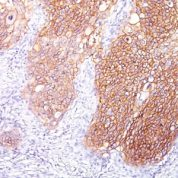 Formalin-fixed, paraffin-embedded human Lung SCC stained with EGFR Monoclonal Antibody (GFR/1667).