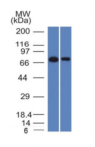 Western Blot of HeLa and A431 Cell Lysates with endoglin / CD15 Monoclonal Antibody (ENG/1327).