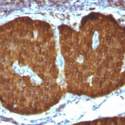 Formalin-fixed, paraffin-embedded Human Cerebellum stained with NSE gamma Monoclonal Antibody (ENO2/1375).