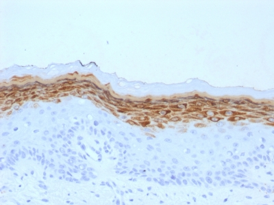 Formalin-fixed, paraffin-embedded human Skin stained with Filaggrin Monoclonal Antibody (FLG/1561).