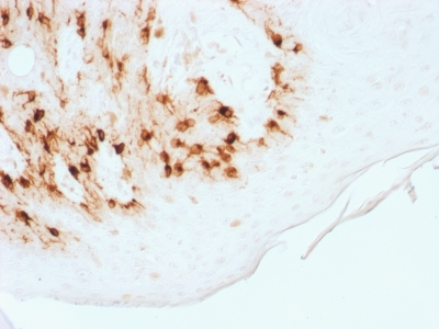 Formalin-fixed, paraffin-embedded Human Melanoma stained with MART-1 Recombinant Rabbit Monoclonal Antibody (MLANA/1761R)
