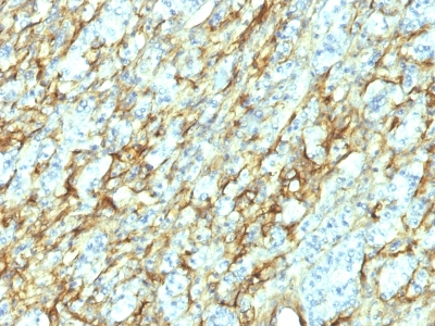 Formalin-fixed, paraffin-embedded human Renal Cell Carcinoma stained with Fibronectin Monoclonal Antibody (568).
